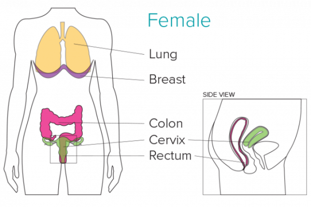 Cancer Symptoms (Female)